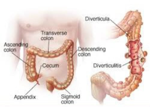 image of bowel | diverticular disease diet | goodMix Superfoods
